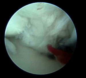 Image of a torn shoulder tendon taken with a scope.